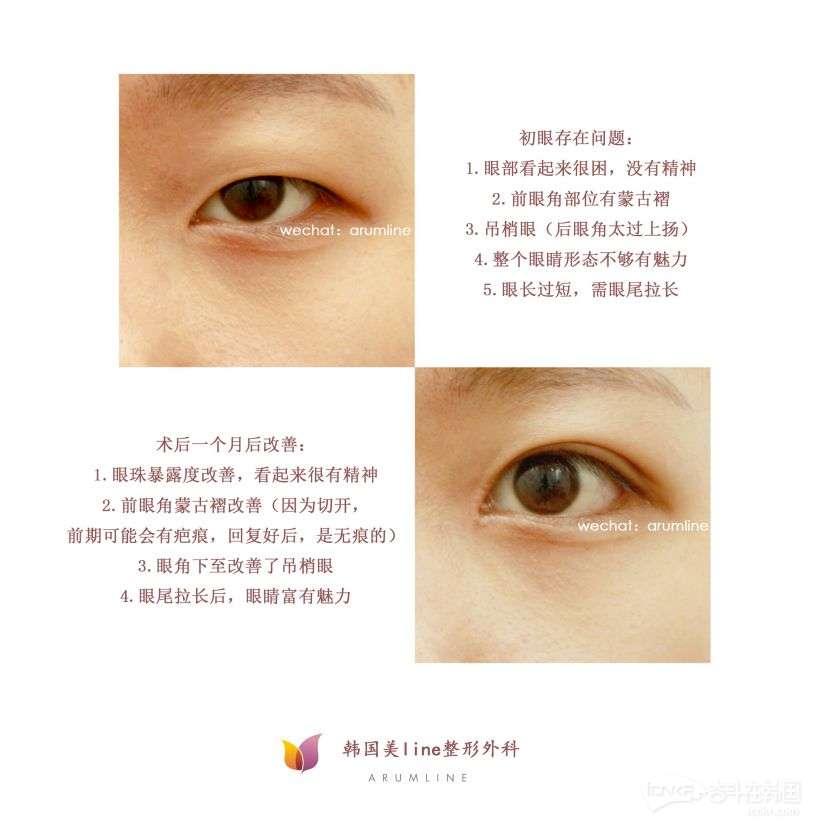 提肌加延后眼角.jpg
