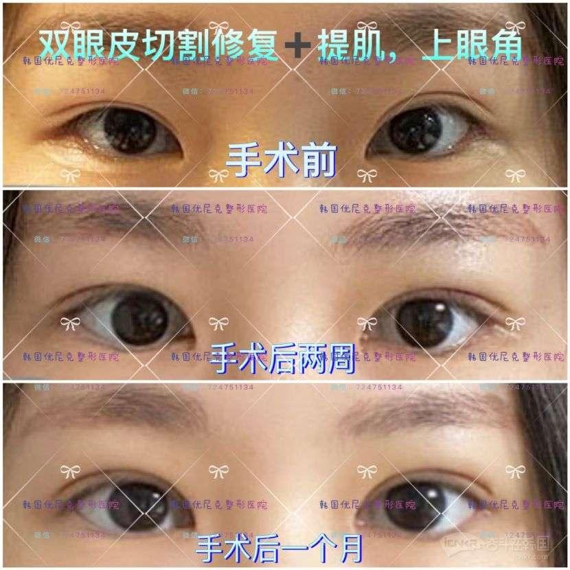 【韩国优尼克整形医院】眼部修复最专业的医院